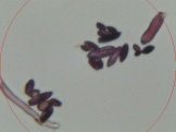 Slide2a.Gram Stain.Plate 2.40x.4